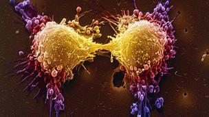 130316102845_prostate_cancer_damages_sex_life_304x171_bbc_nocredit