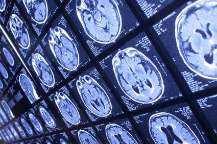 saudi radiology programme