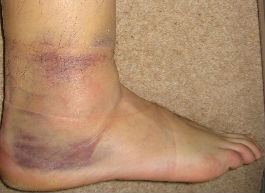 Ankle-Sprain-Swelling1