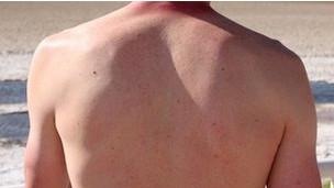 111111110442_skin_cancer_304x171_bbc_nocredit