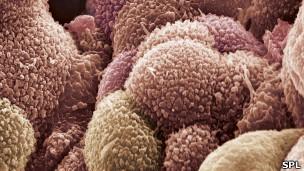 120131101313_ovarian_cancer_cells_304x171_spl