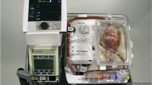 141024161750_dead_heart_transplant_624x351_victorchanginstitute