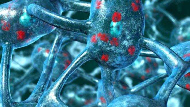 150211093153_breath_test_for_parkinsons_disease_640x360_bbc_nocredit