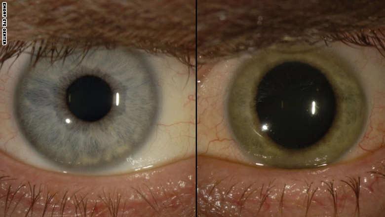 150508082818-ebola-eye-split-exlarge-169