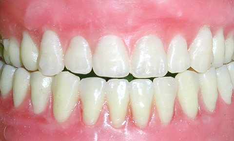6-Ways-to-Keep-Your-Gums-Healthy-2