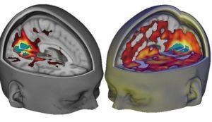 160412121328-brain-on-lsd-exlarge-169