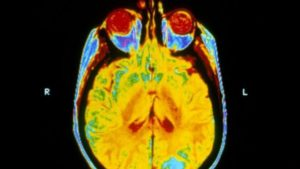 160905121242_brain_radiotherapy_cancer_640x360_sciencephotolibrary_nocredit
