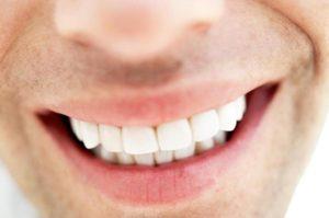 3-teeth-whitening